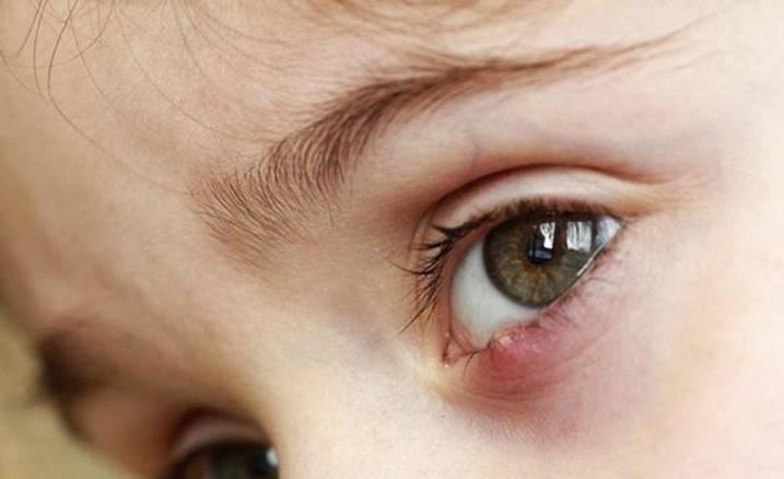 Чайные пакетики на глаза для косметических целей